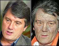 Yushchenko before and after his poisoning